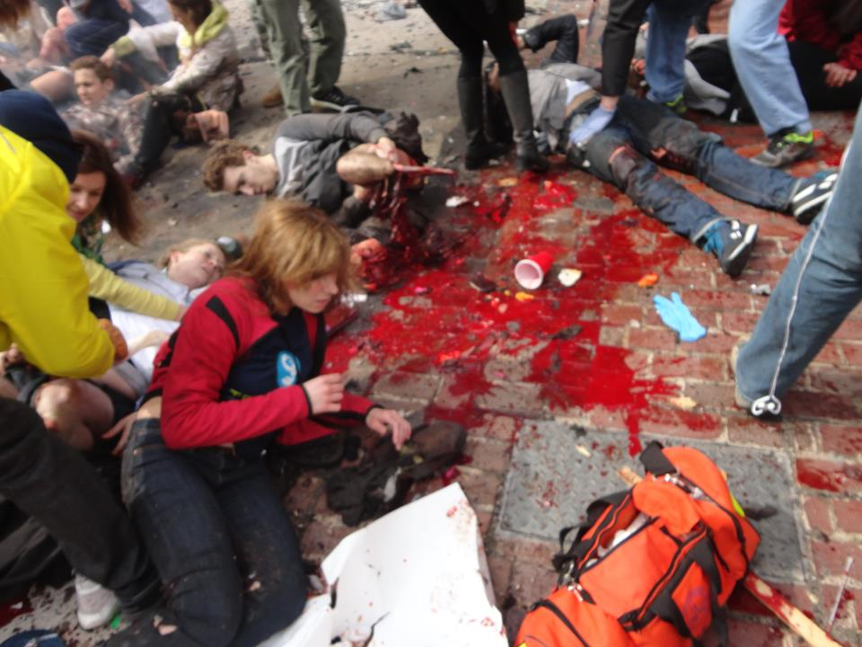 Photos of the Boston Marathon Bombing (VERY GRAPHIC - DISCRETION ADVISED) (3/6)