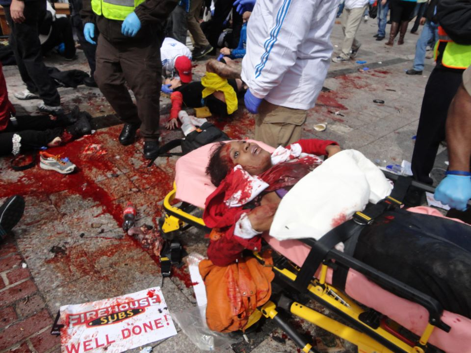 Photos of the Boston Marathon Bombing (VERY GRAPHIC - DISCRETION ADVISED) (6/6)