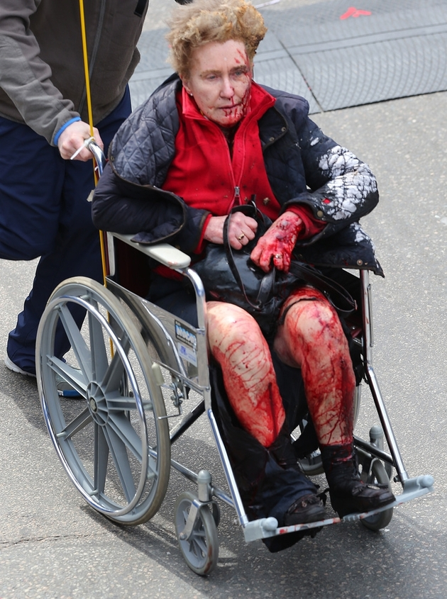 Photos of the Boston Marathon Bombing (VERY GRAPHIC - DISCRETION ADVISED) (2/6)